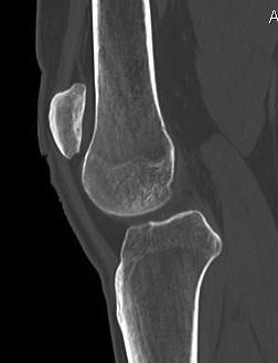 Chronic Patella Dislocation 2
