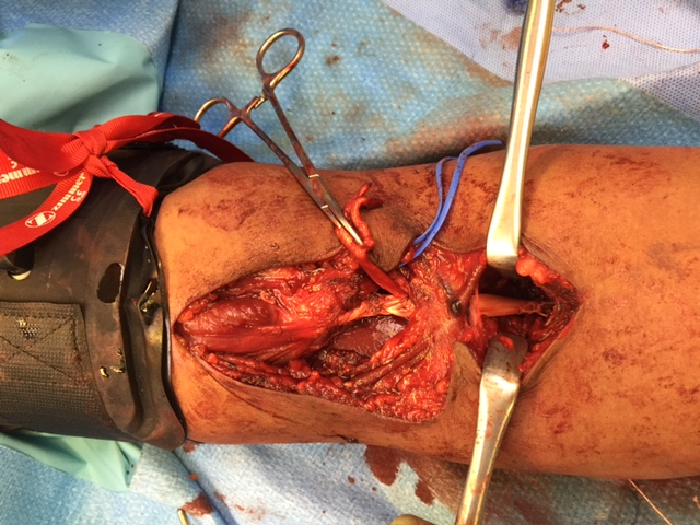 Distal biceps reconstruction with allograft