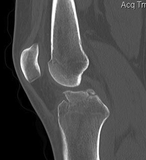 ACL Bony Avulsion CT