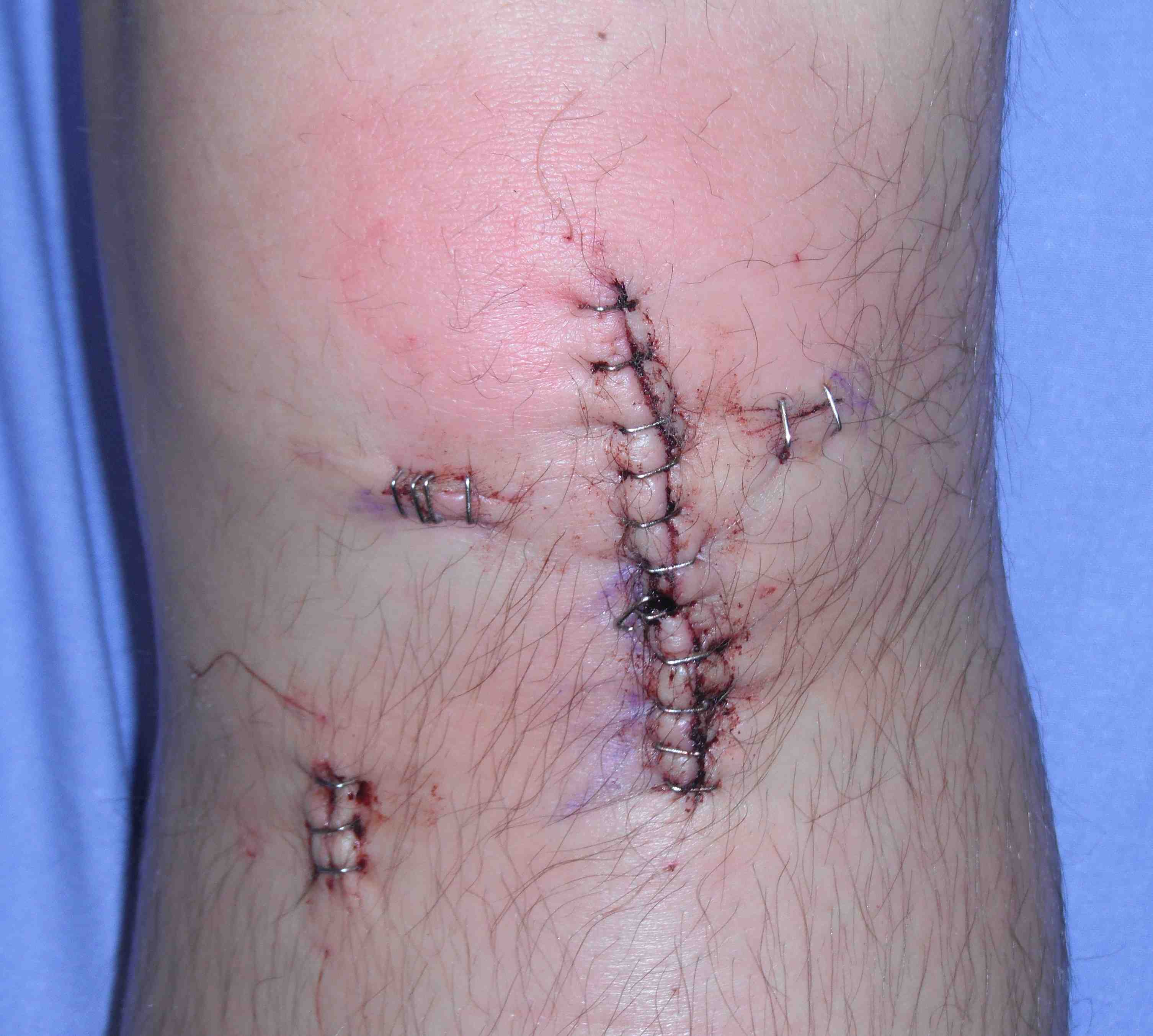 ACL BPTB Incisions