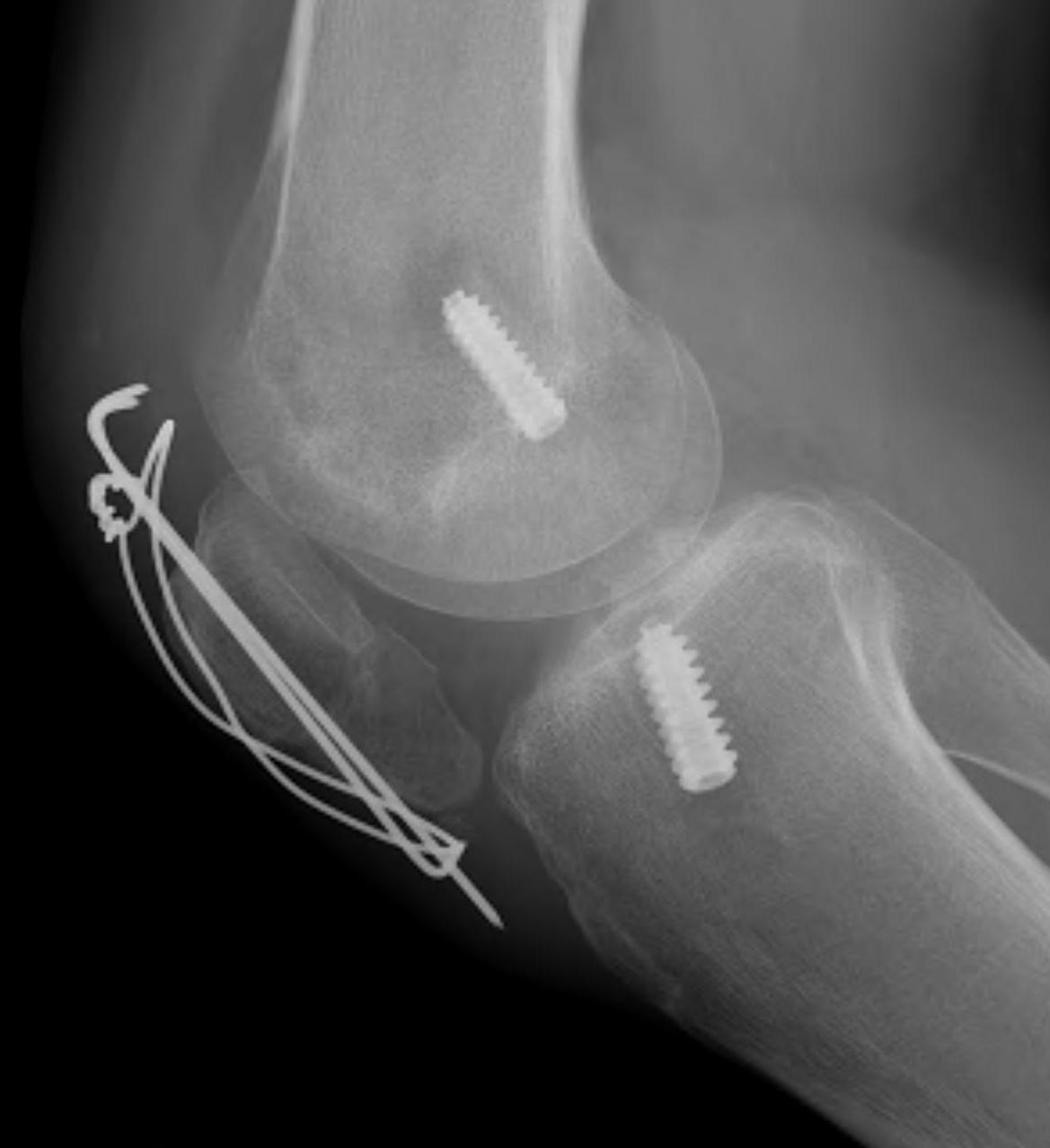 ACL BPTB Patella ORiF Lateral