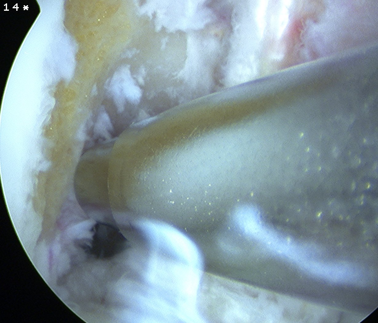 ACL Clear Lateral Wall