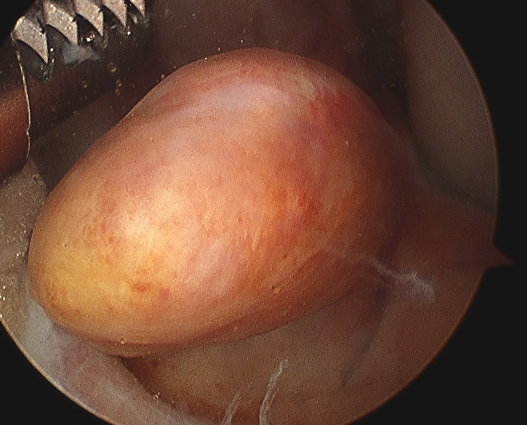 ACL Stump Arthroscopy