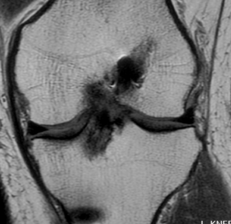 ACL Graft Rupture Coronal MRI