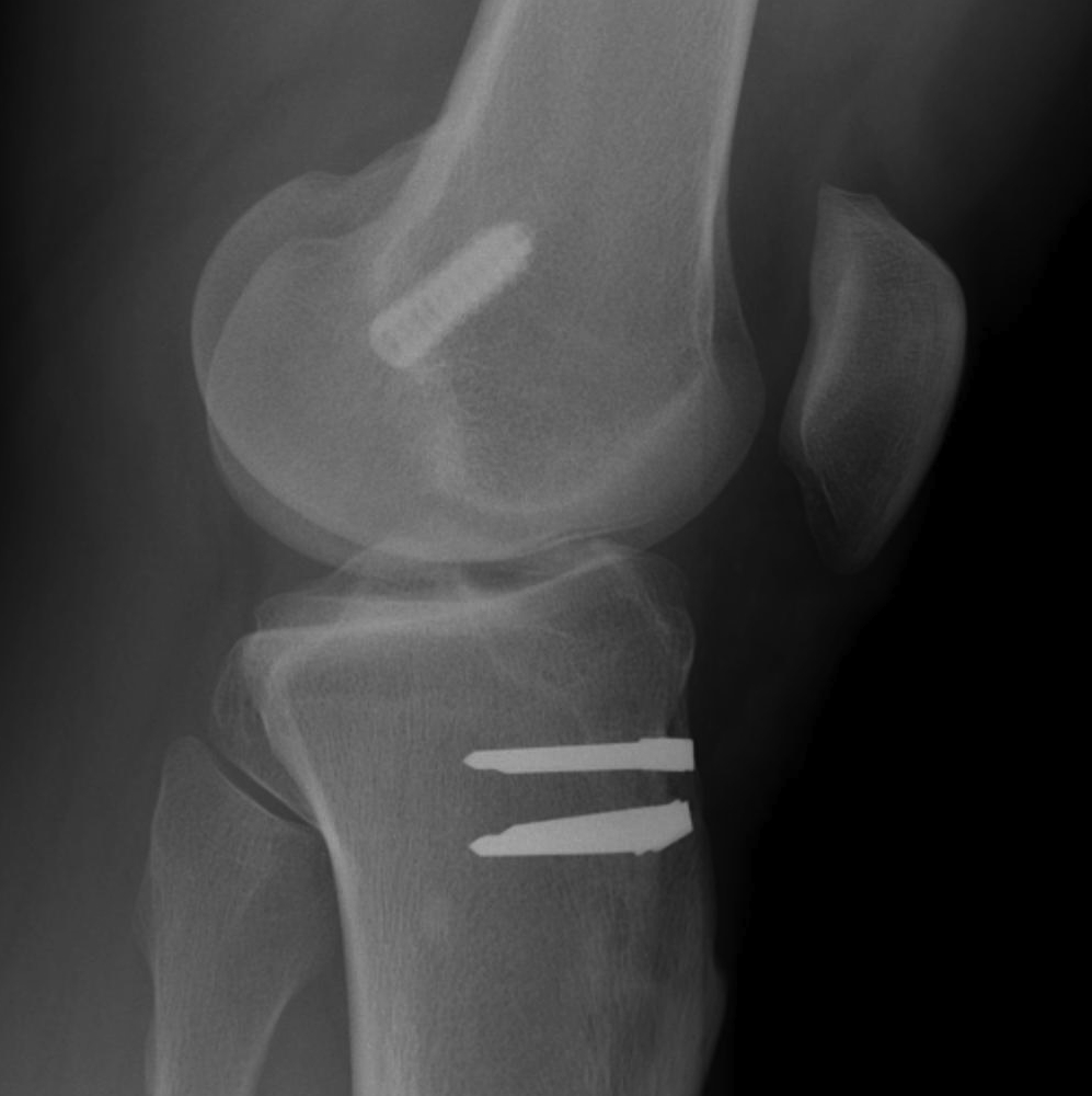ACL Graft Rupture Femoral Tunnel Anterior