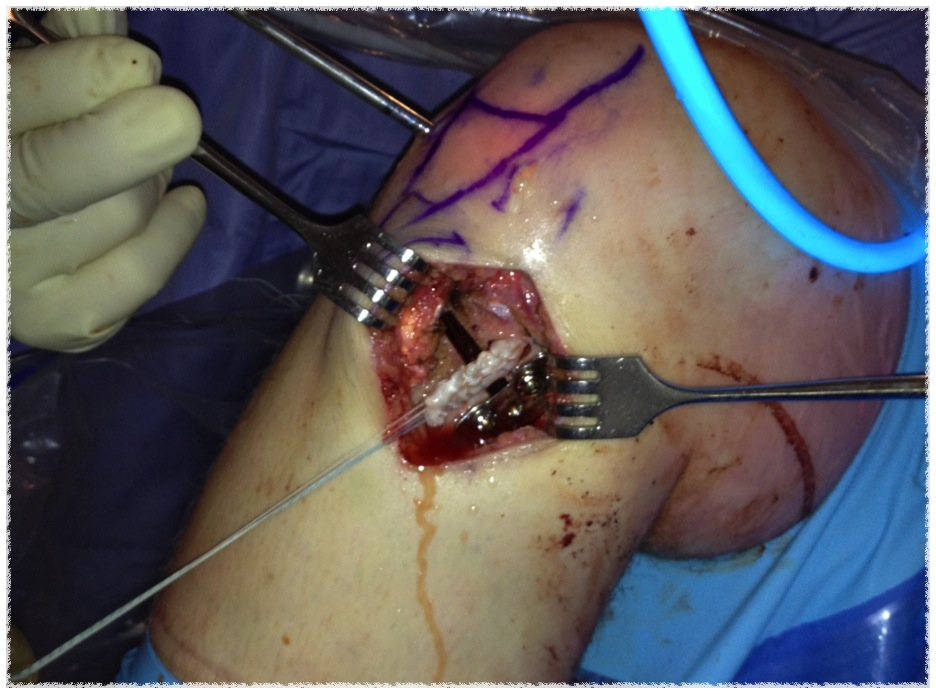 ACL HTO Intraoperative
