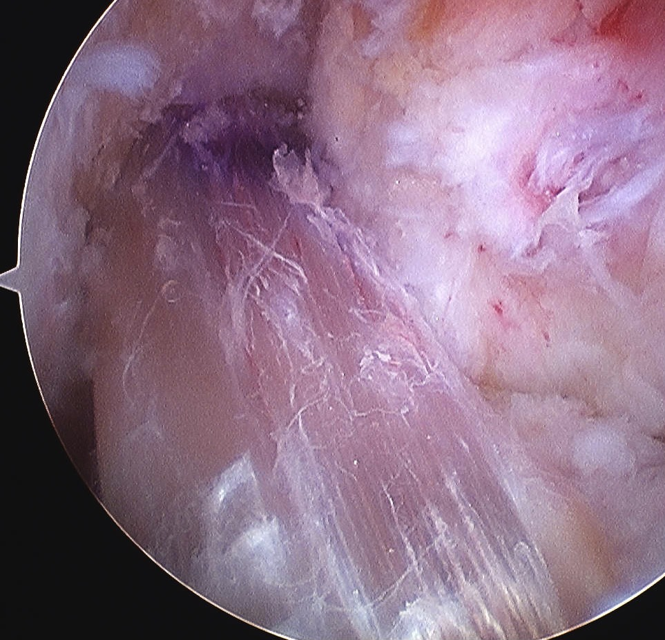 ACL Hamstring Autograft Arthroscopy