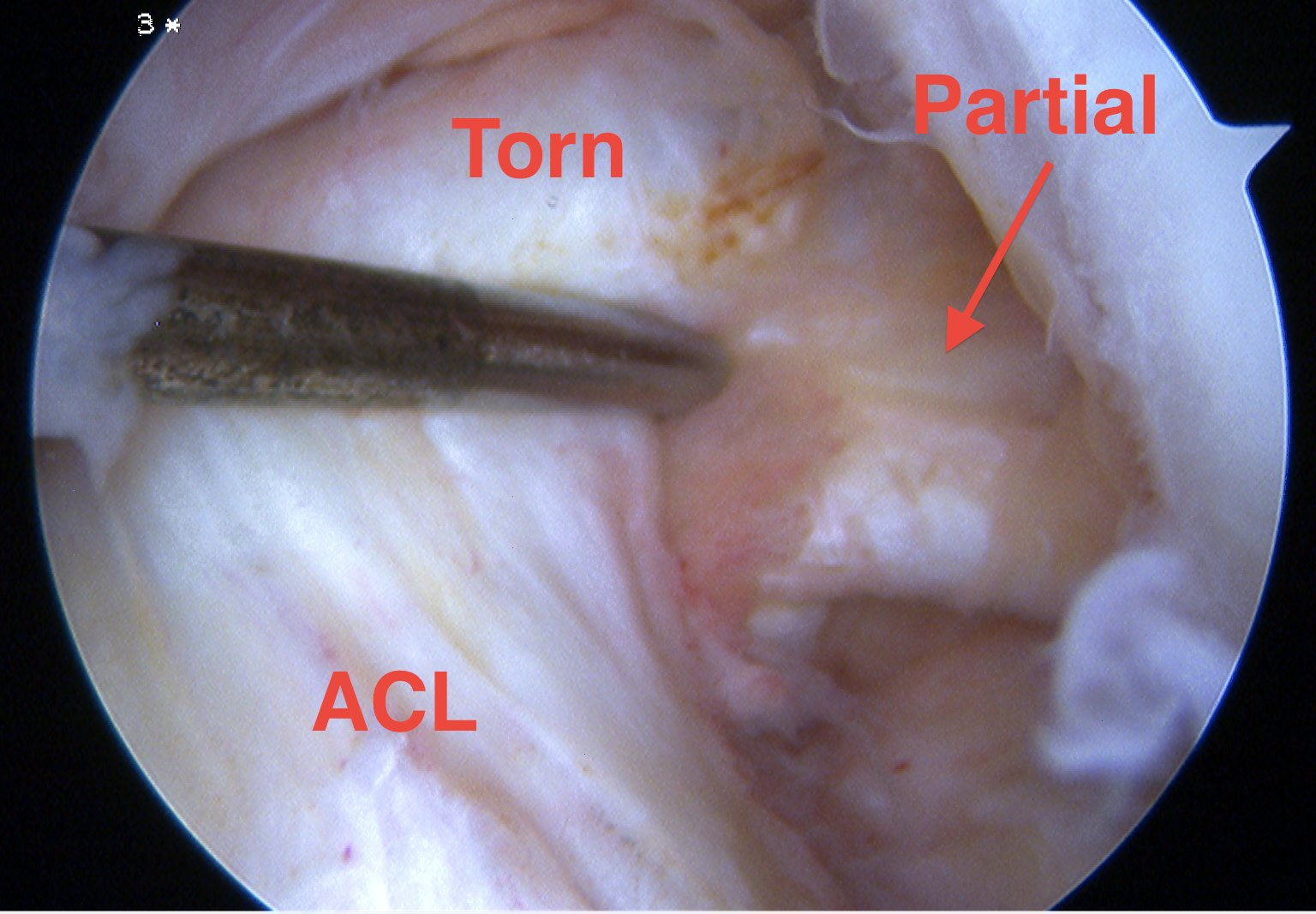 ACL Partial Tear Arthroscopy
