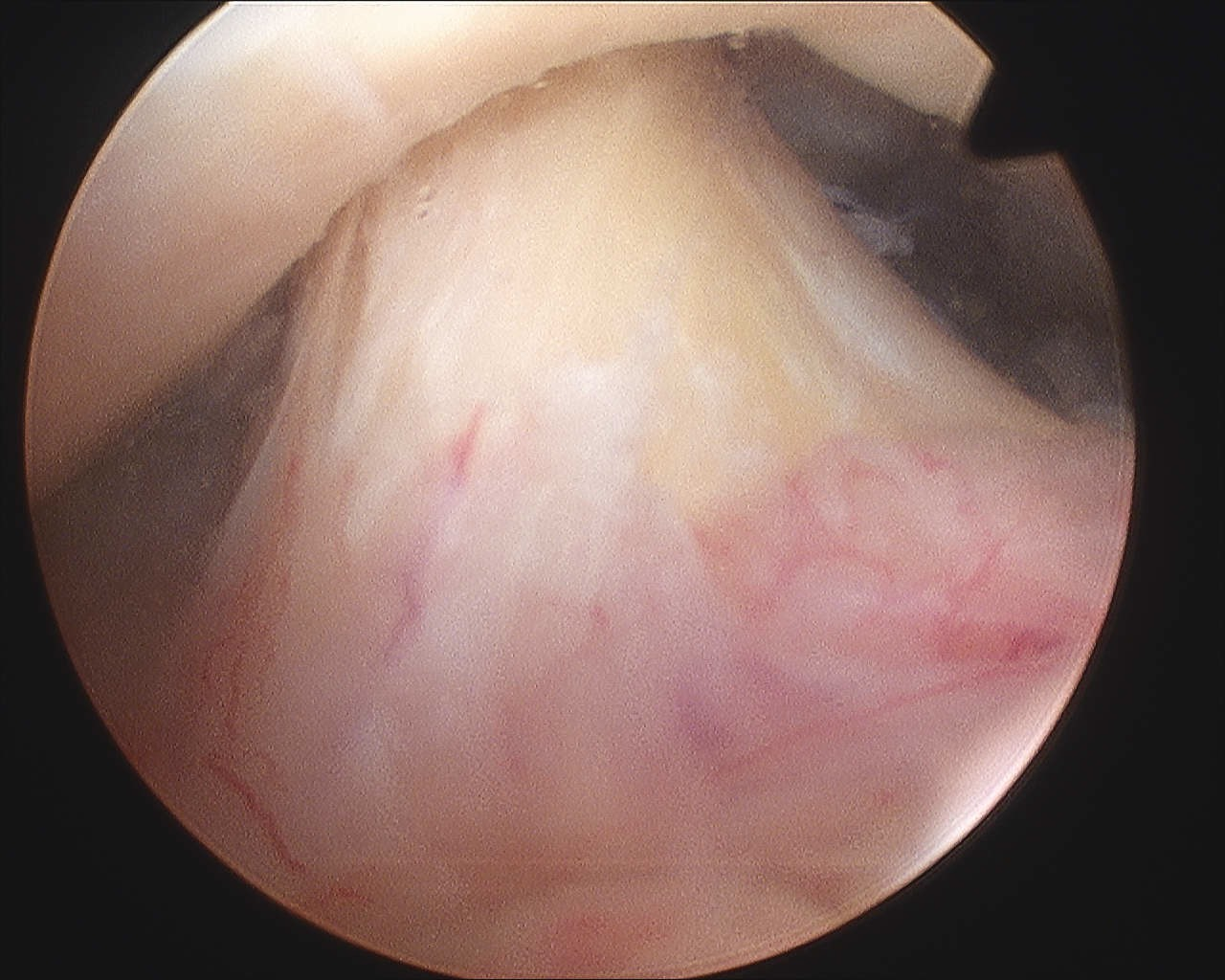ACL Normal Arthroscopy