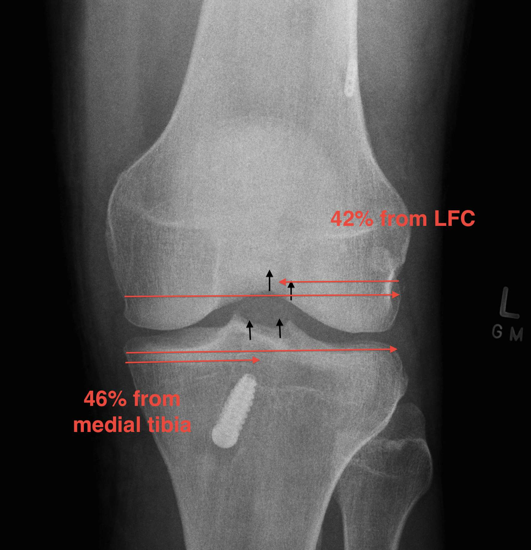 ACL Reconstruction AP Tunnel Measurements