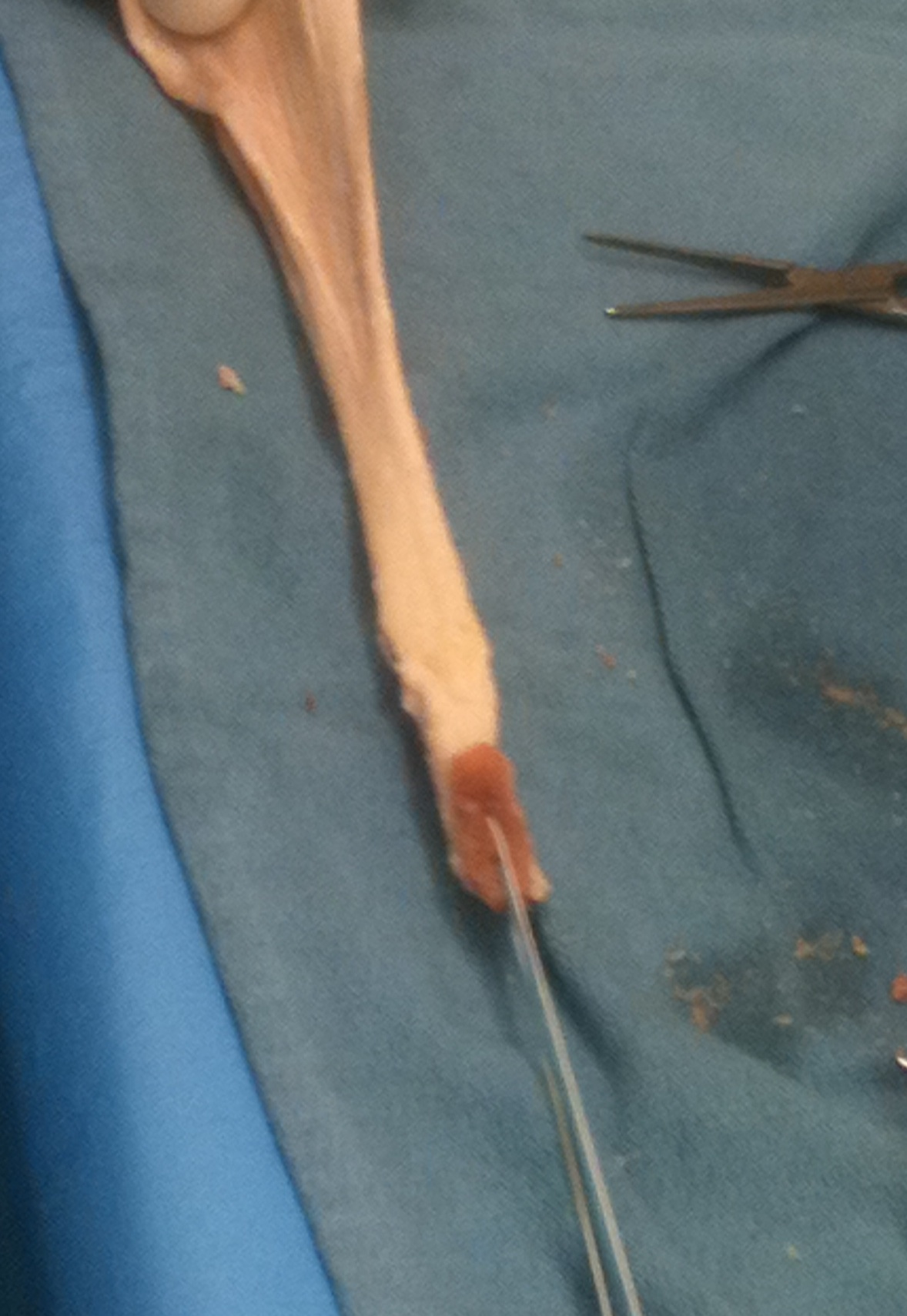 Achilles Tendon Allograft Final