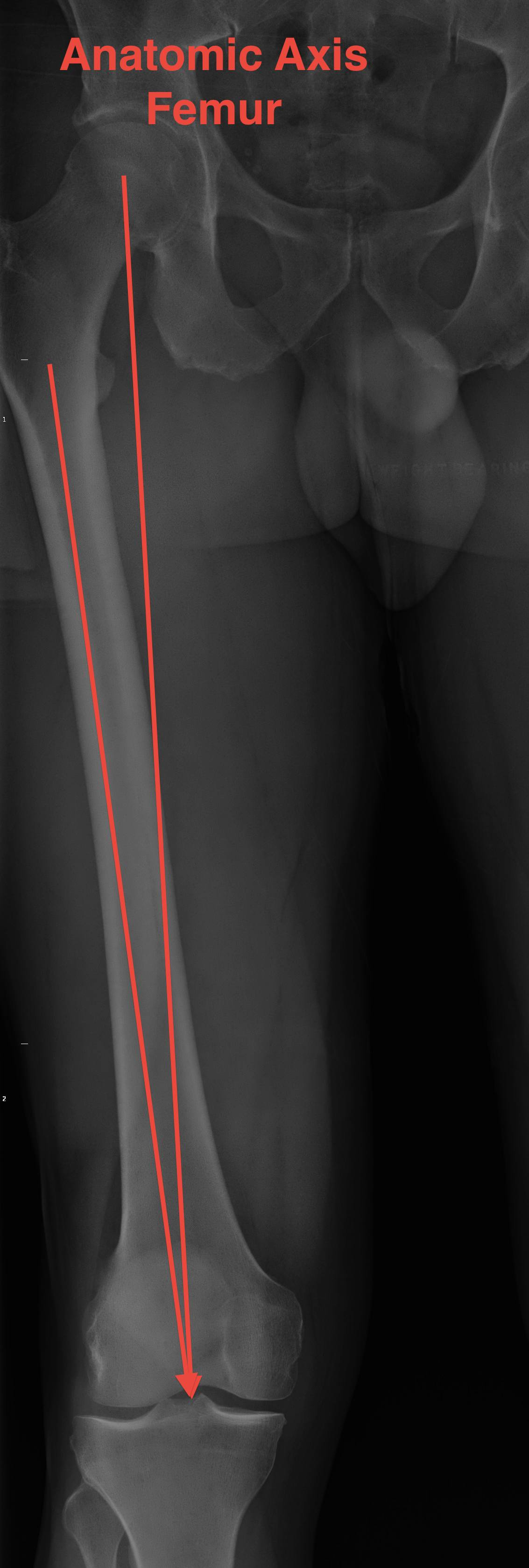 Anatomic Axis Femur