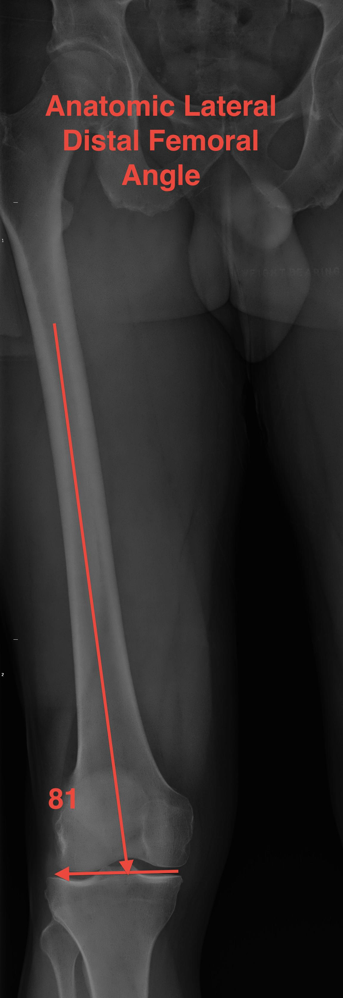 Anatomic Lateral Distal Femoral Angle