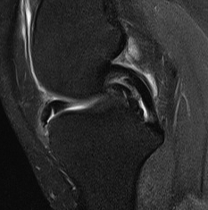 Medial Meniscus Bucket Handle Tear Anterior Flipped Meniscus