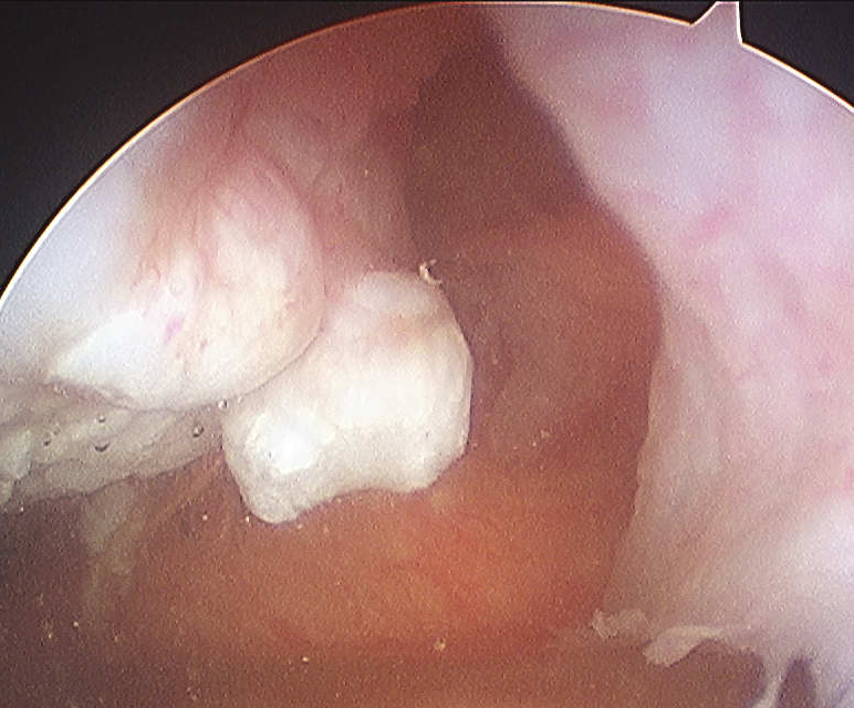 Patella Dislocation MPFL Disruption Patella Arthroscopy