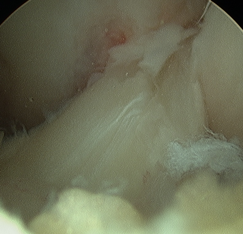 Arthroscopy Lax ACL