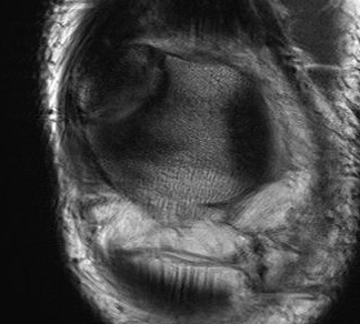 Bipartite patella MRI