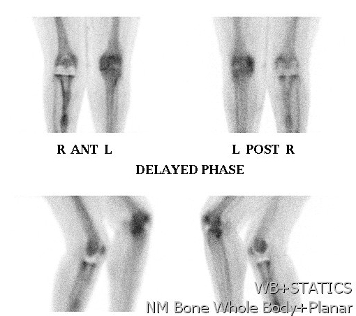 Bone Scan Loose TKR Increased Bone Phase
