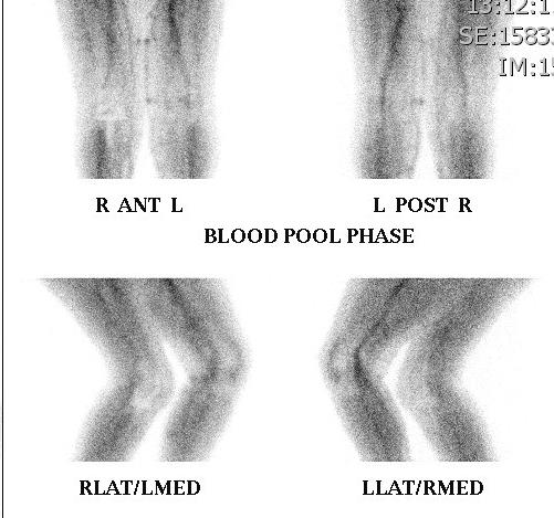 Bone Scan Loose TKR Normal Blood Pool Phase