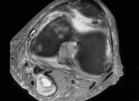 Bakers Cyst MRI