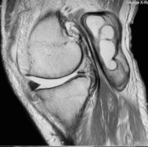 Knee Cysts & Bursa | The Bone School