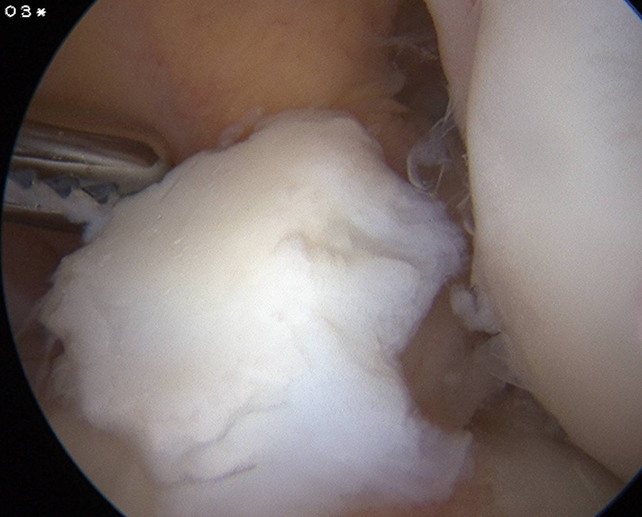 Chondral Lesion Post ACL Injury