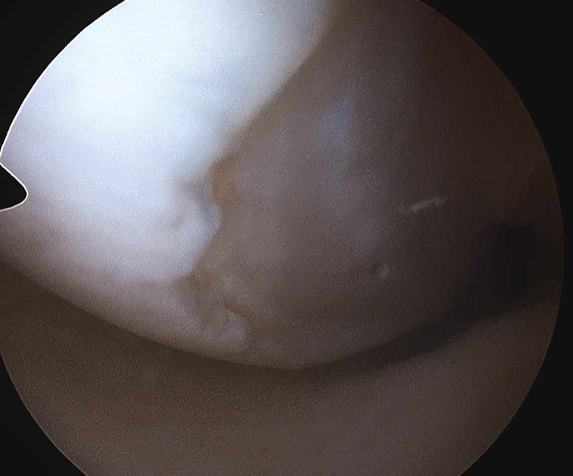 Chondral Defect Medial Femoral Condyle