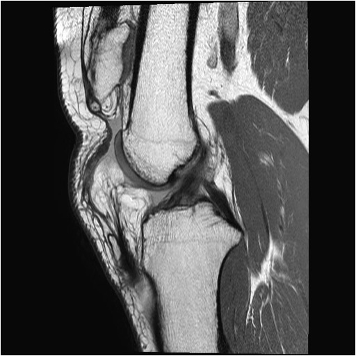 Chronic Patella Tendon Rupture MRI