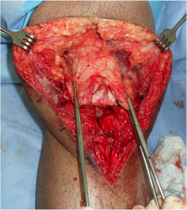 Chronic Patella Tendon Rupture 2