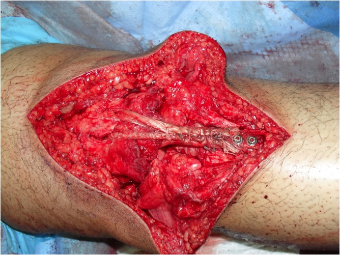 Chronic Patella Tendon Rupture 5