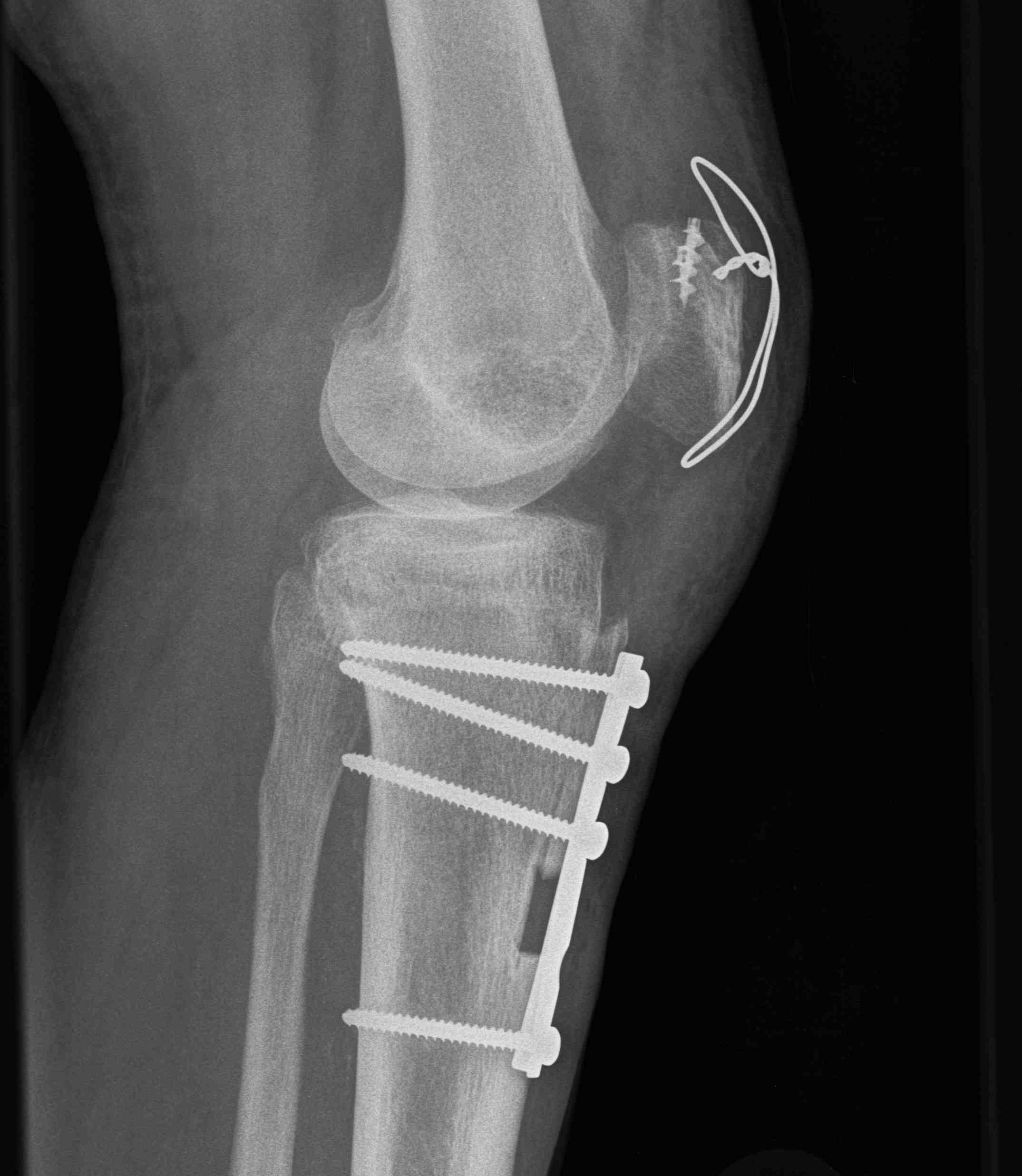 Revision Quadriceps Repair with Tibial Tuberosity Osteotomy