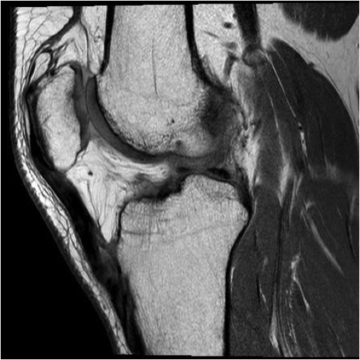 MRI Chronic Quadriceps Rupture