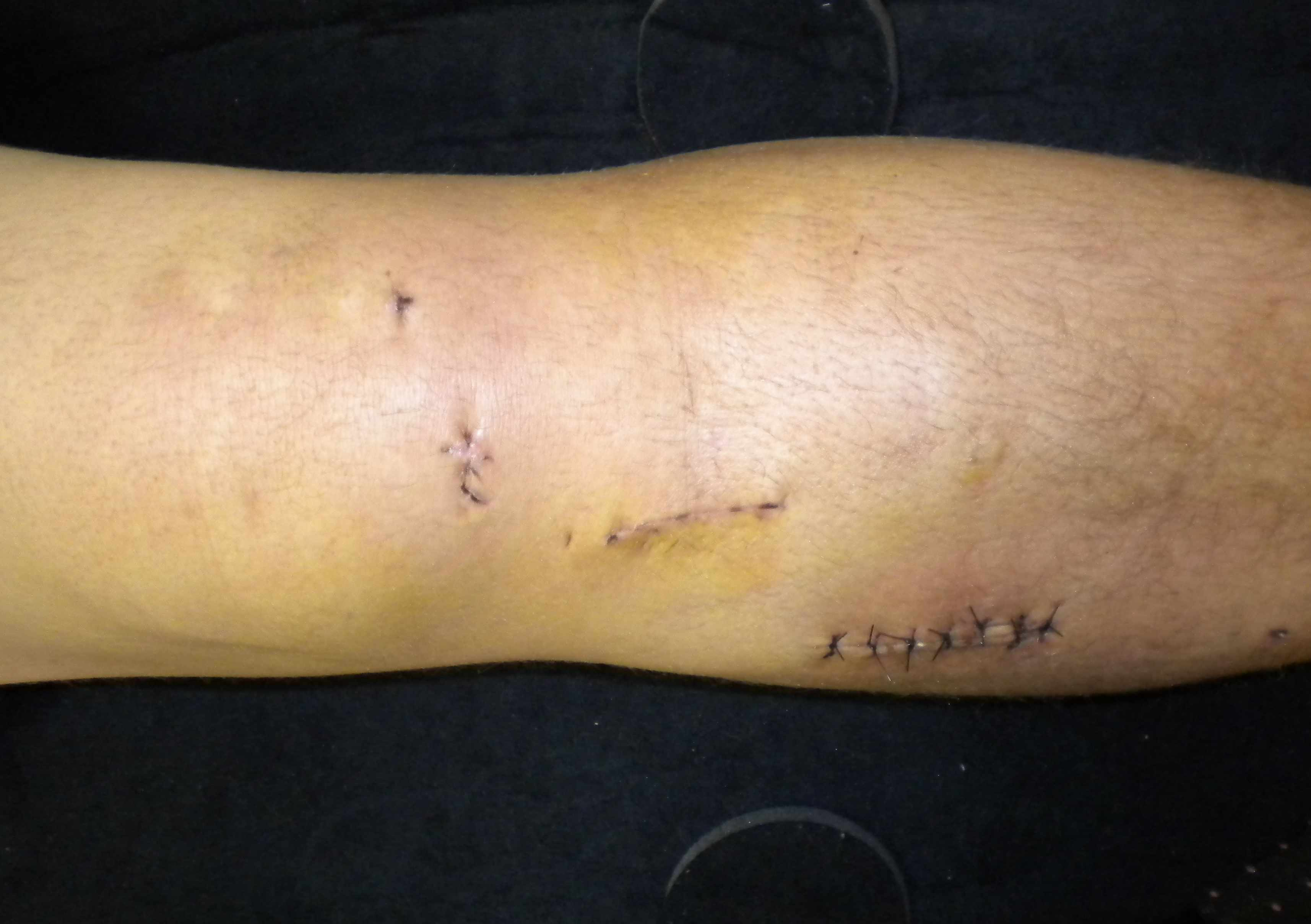 Compartment Syndrome Post ACL Reconstruction