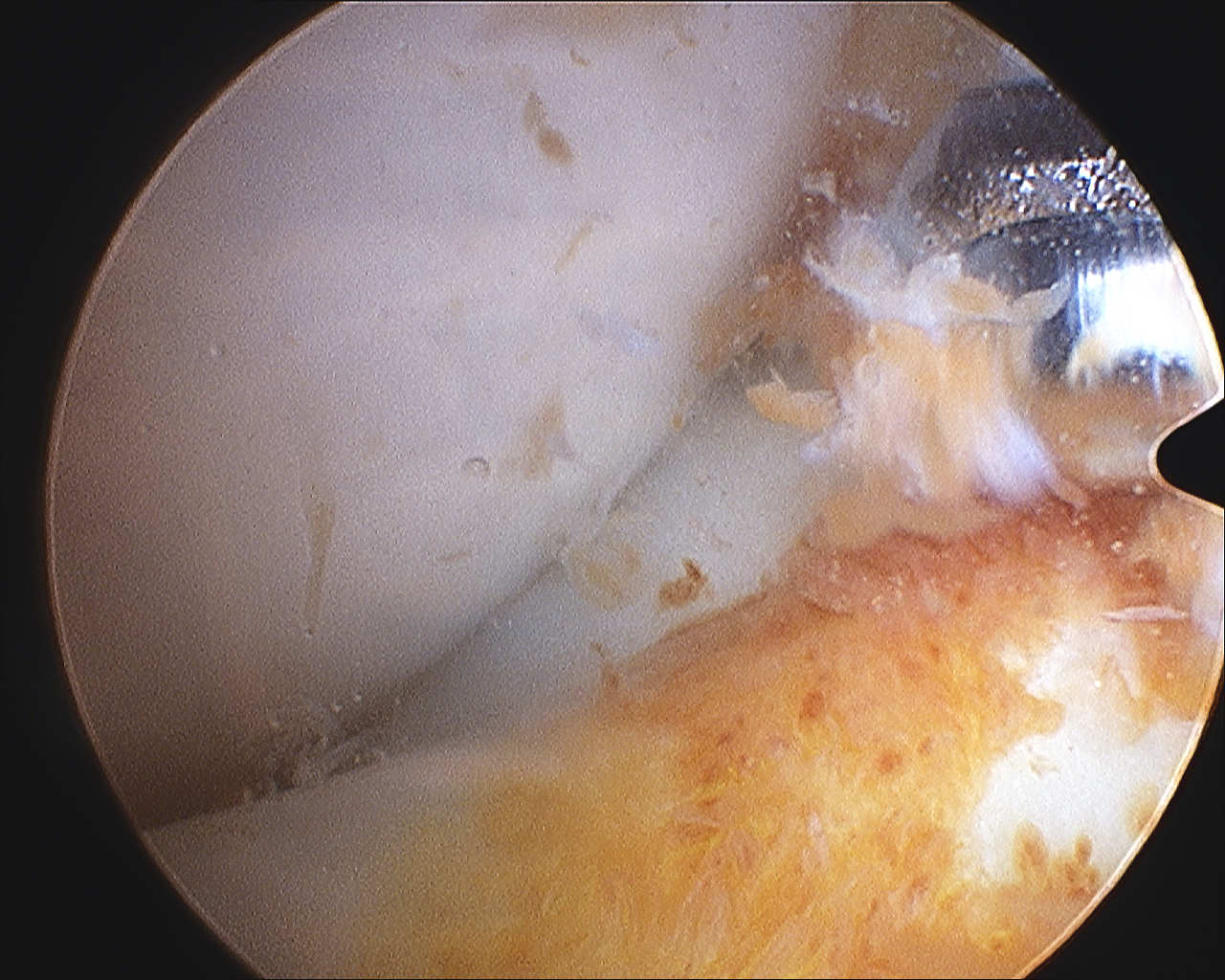 PVNS debridement knee
