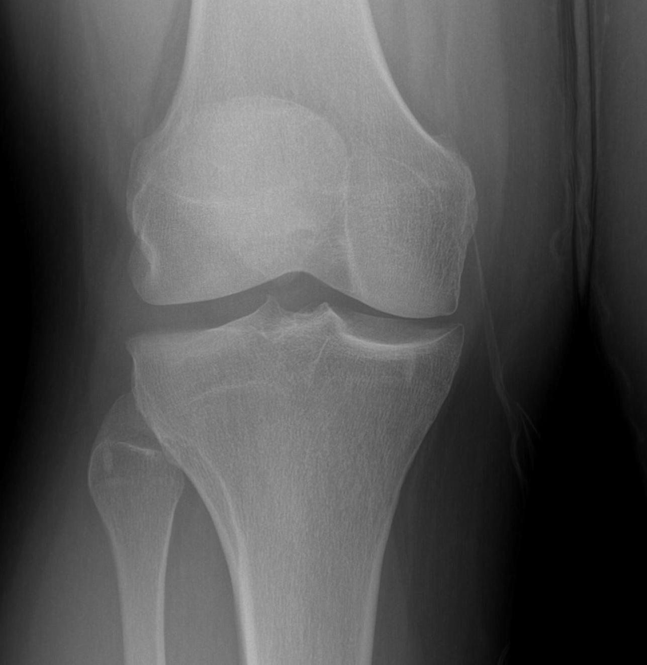 Discoid Meniscus Flattened Condyle Widened Joint Space