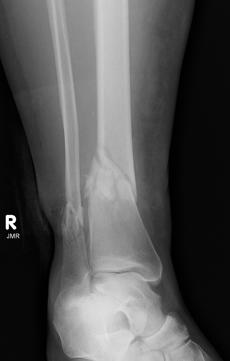 Distal Tibial Fracture