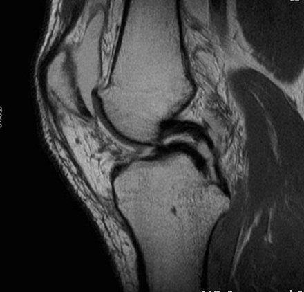 Medial Meniscus Tear Double PCL