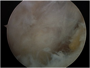 FHL Arthroscopic Release 1