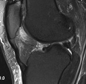 Fat Pad Impingement MRI