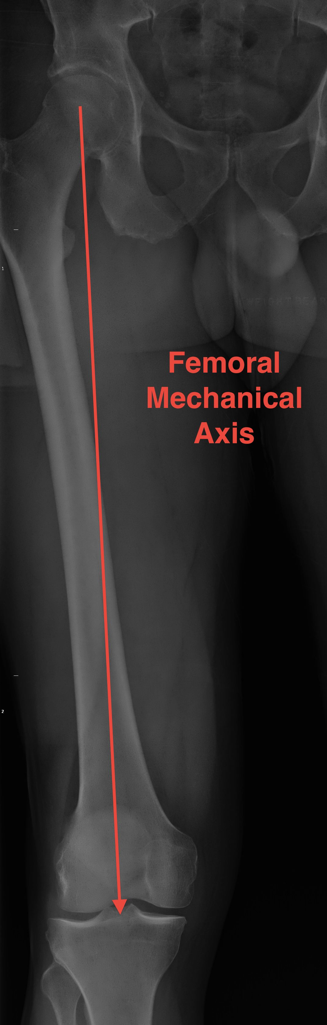 Femoral Mechanical Axis