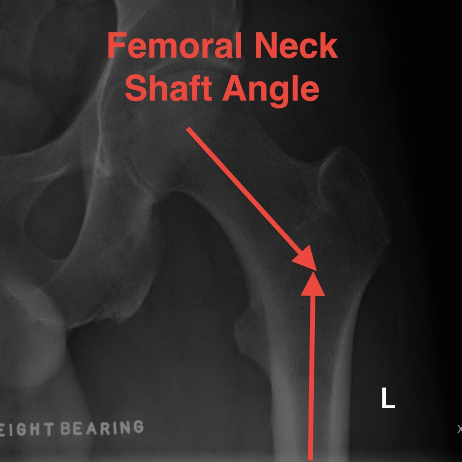 Femoral Neck Shaft Angle