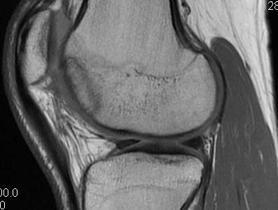 Femoral OCD Healing Post Drilling