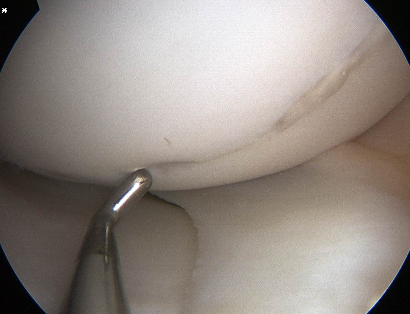 Femoral OCD in situ