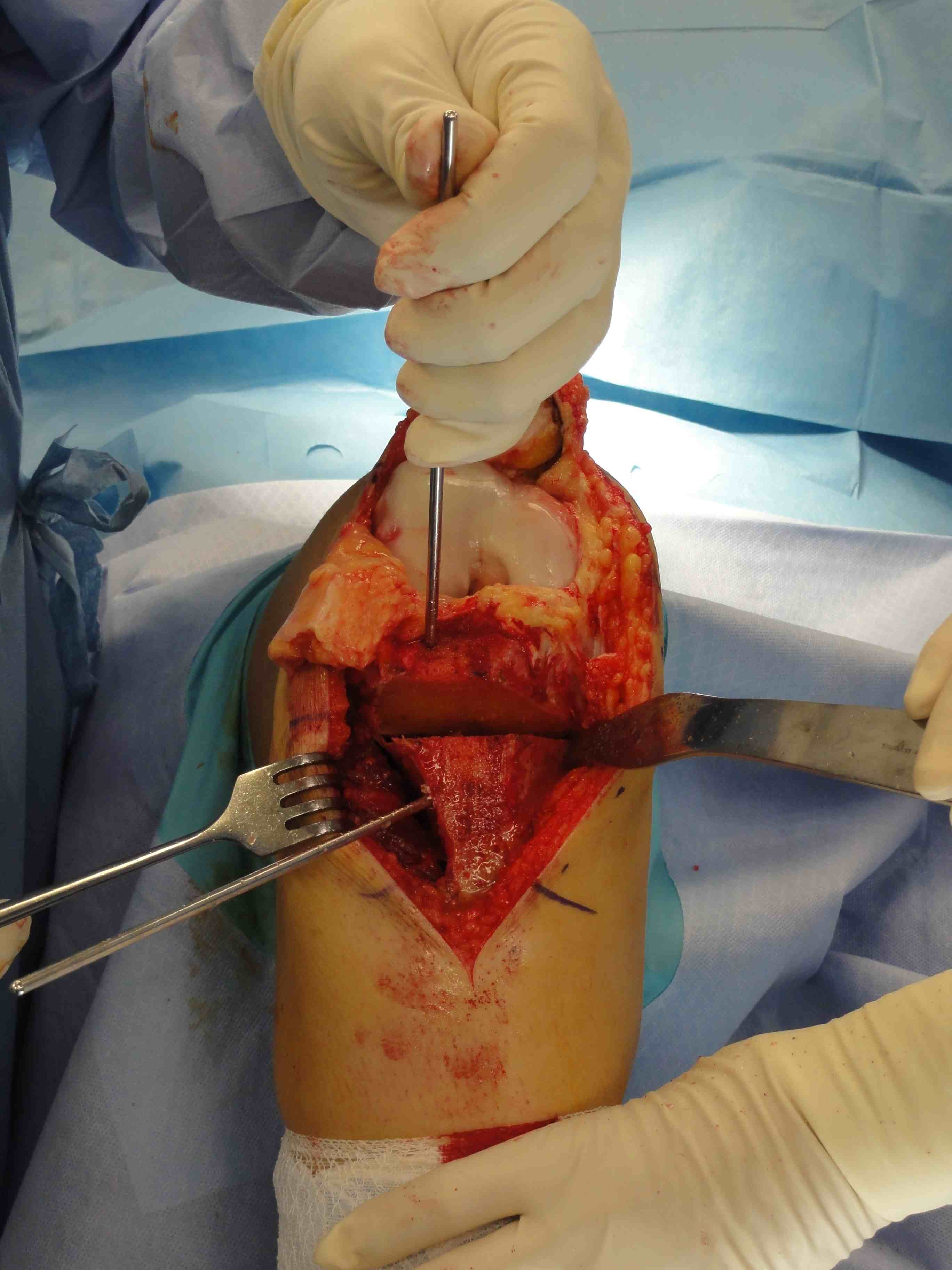 Tibial Derotation Osteotomy