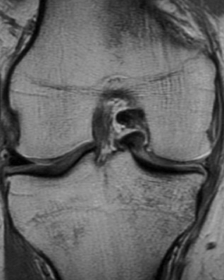 Medial Meniscus Bucket Handle Tear Fragment in Notch