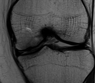 Healed OCD MRI Post ORIF