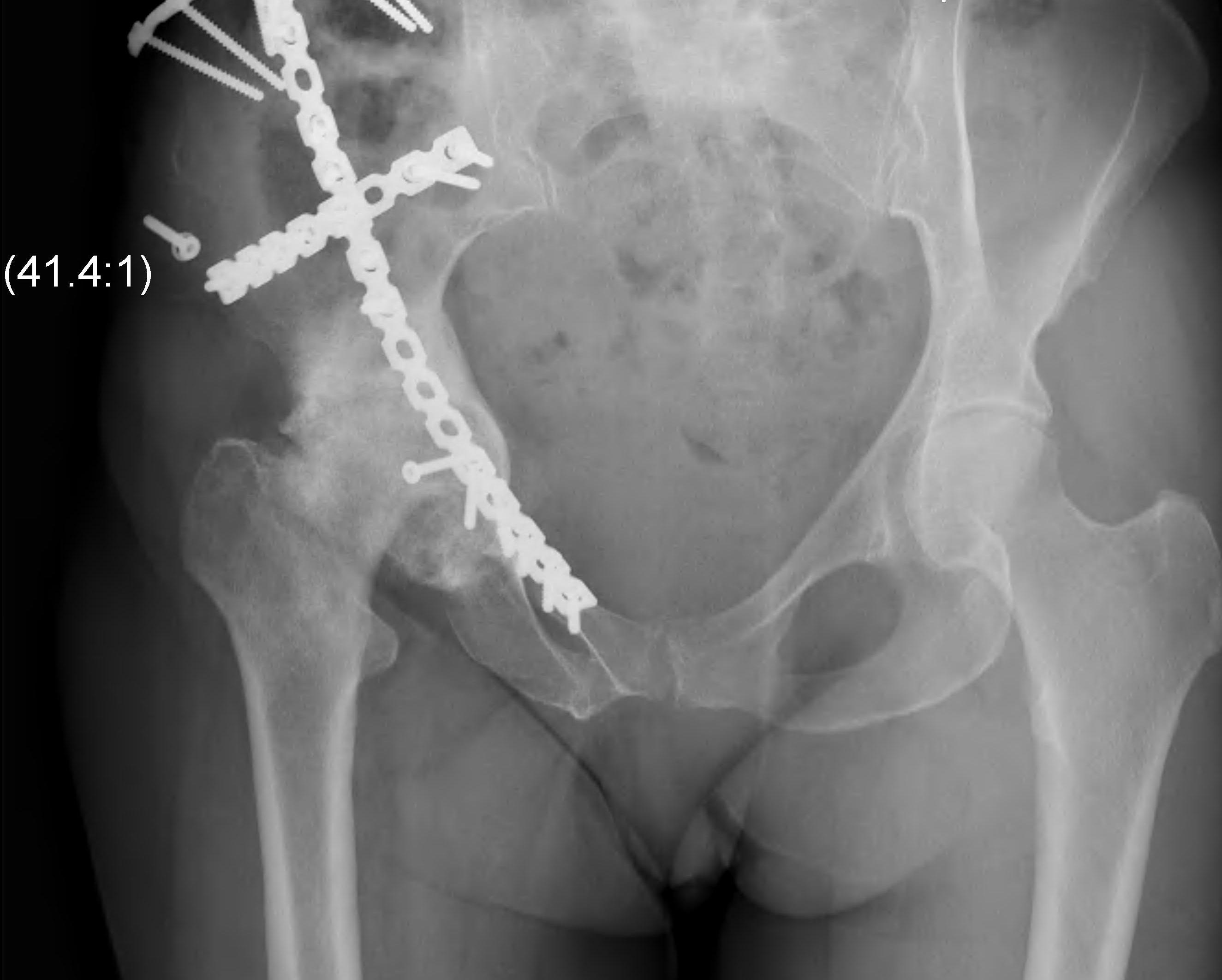 Hip OA post Acetabular Fracture