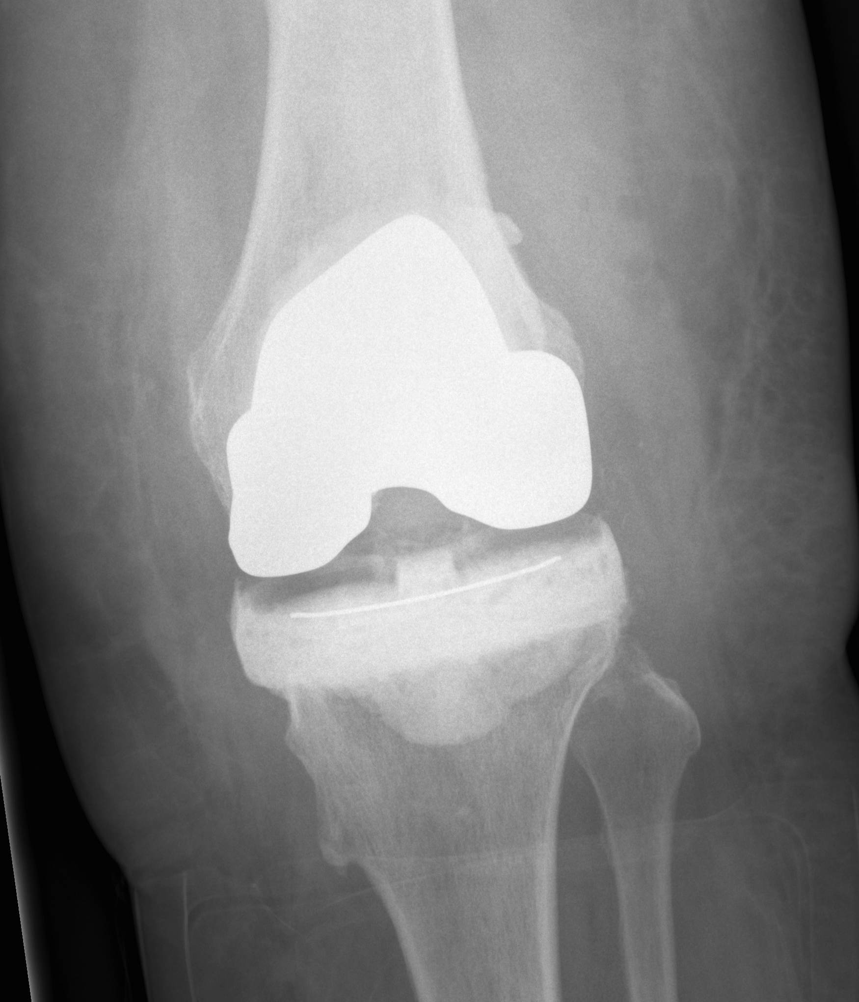 Infected TKR Autoclave Femur Cement Tibia AP