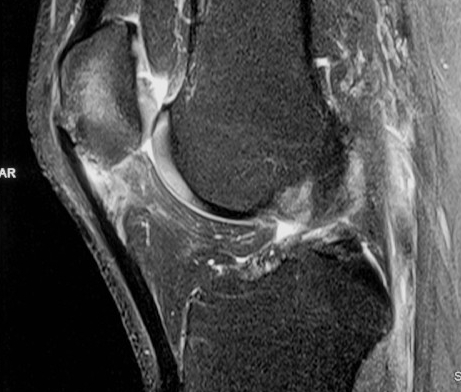 Jumpers Knee MRI
