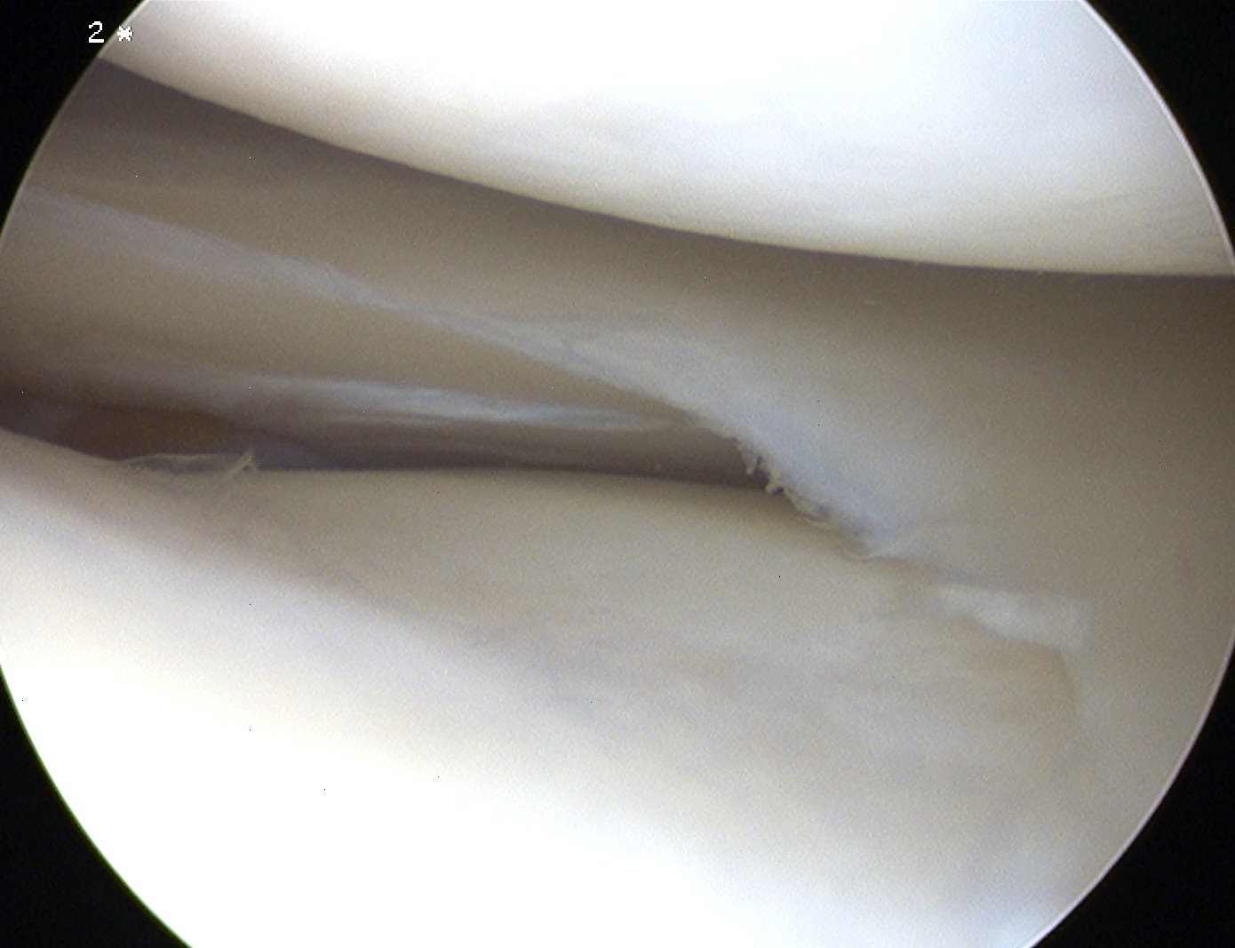 Knee Arthroscopy Healed Meniscal Tear Undersurface Lateral Meniscus